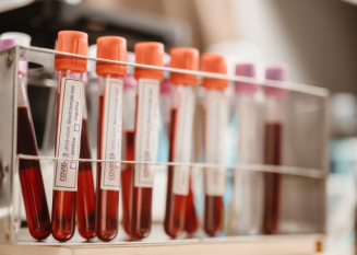 Koronaviruksen vasta-aineet säilyvät ainakin puoli vuotta